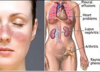 Triệu chứng của bệnh lupus ban đỏ