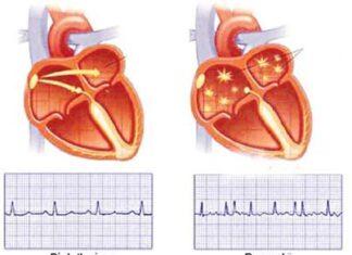 Rung nhĩ nguyên nhân gây tắc mạch