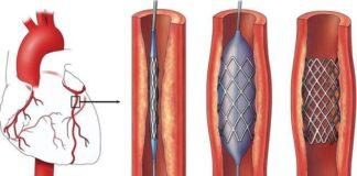 Sử dụng tiêu sợi huyết trong nhồi máu cơ tim cấp | Vinmec