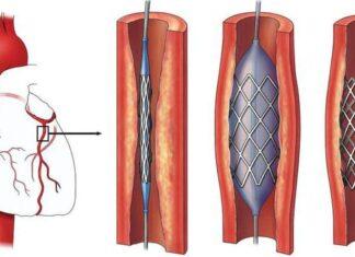 Sử dụng tiêu sợi huyết trong nhồi máu cơ tim cấp   Vinmec